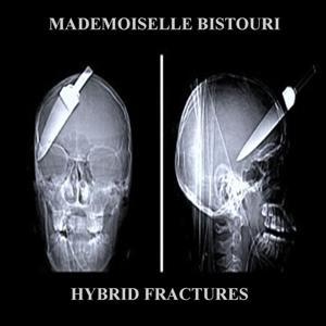 Hybrid Fractures